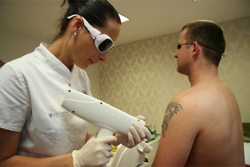 Tatuiruočių naikinimas